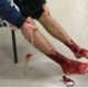 Teen's feet bloodied by sea creatures